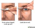 Eyelid eversion